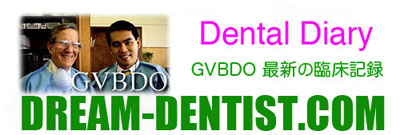Enamel, Modification, エナメル,形態修正,,GVBDO,G.V. BLACK DENTAL OFFICE
